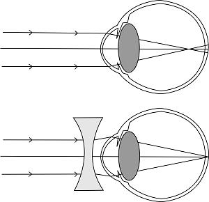 Myopie problèmes de vue opticien Colmar Mavision optométrie