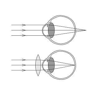 Hypermétropie et presbytie problème de vue Mavision opticien Colmar optpmétrie info